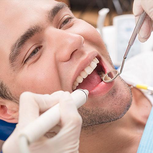 bucco-dentaires